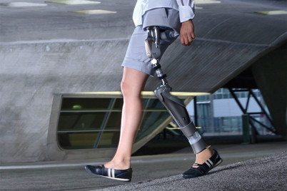 Hip joint prosthesis with iglidur® bearings by Otto Bock HealthCare GmbH